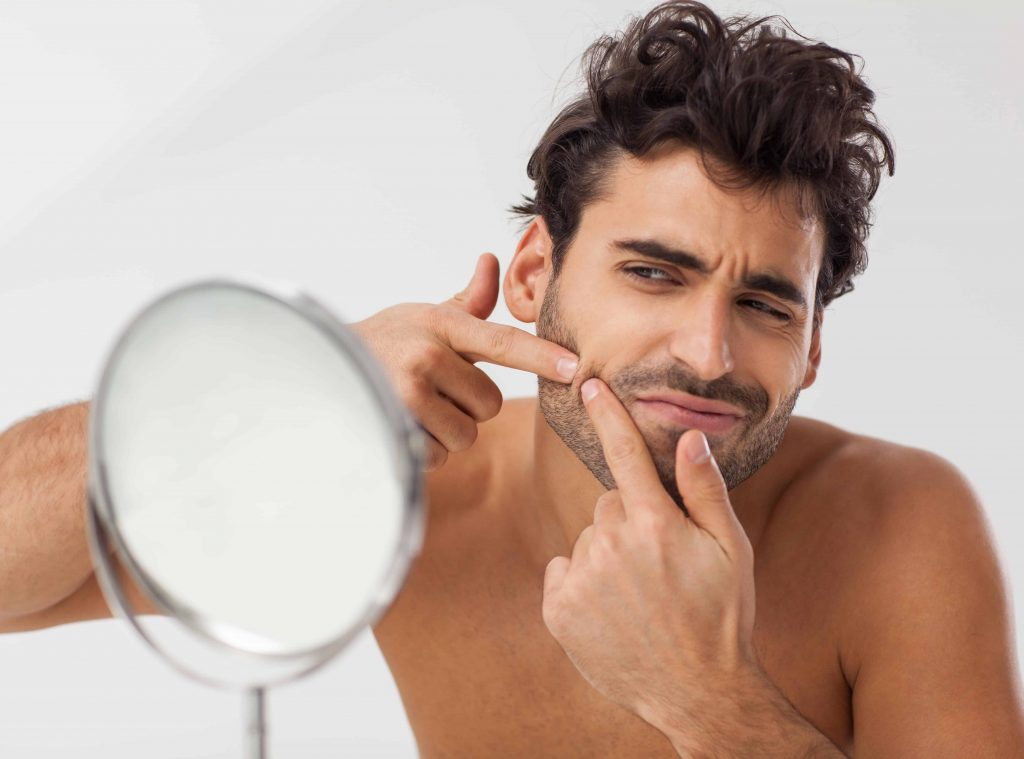 how to deal with pimple under your beard