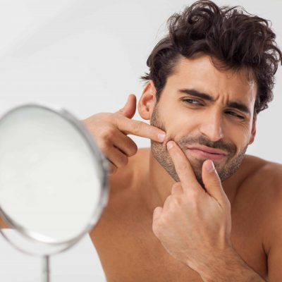 How to Deal with Pimples Under the Beard