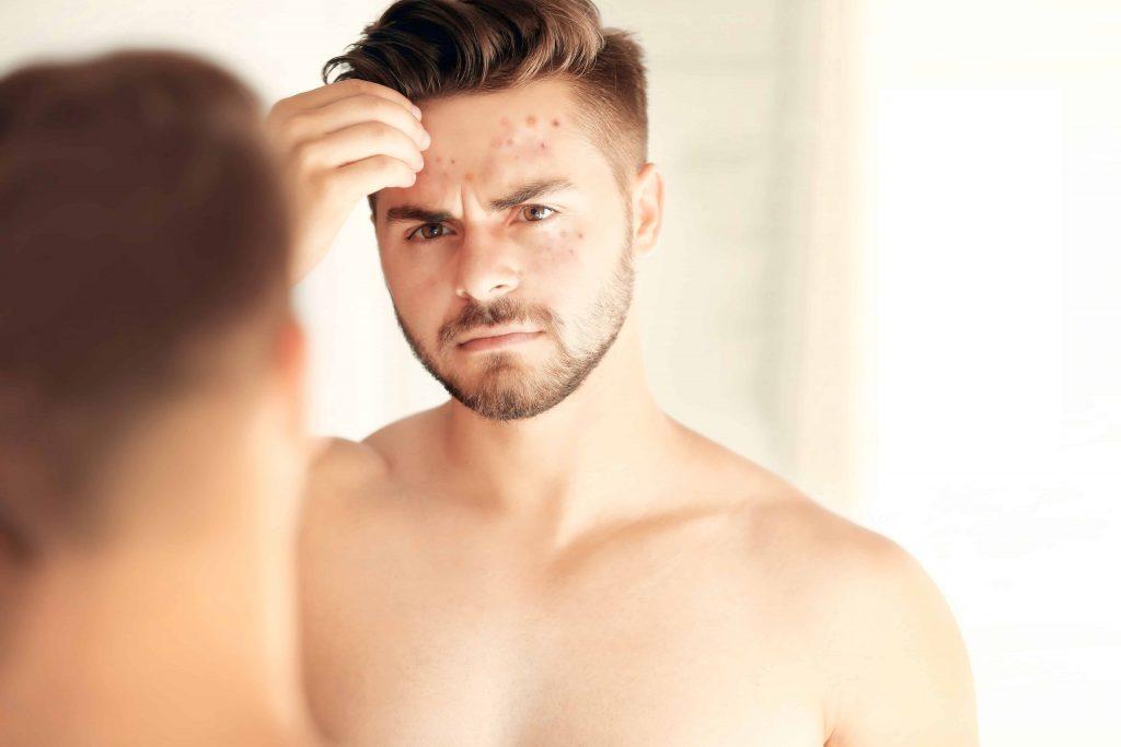 beard skin care for oily skin