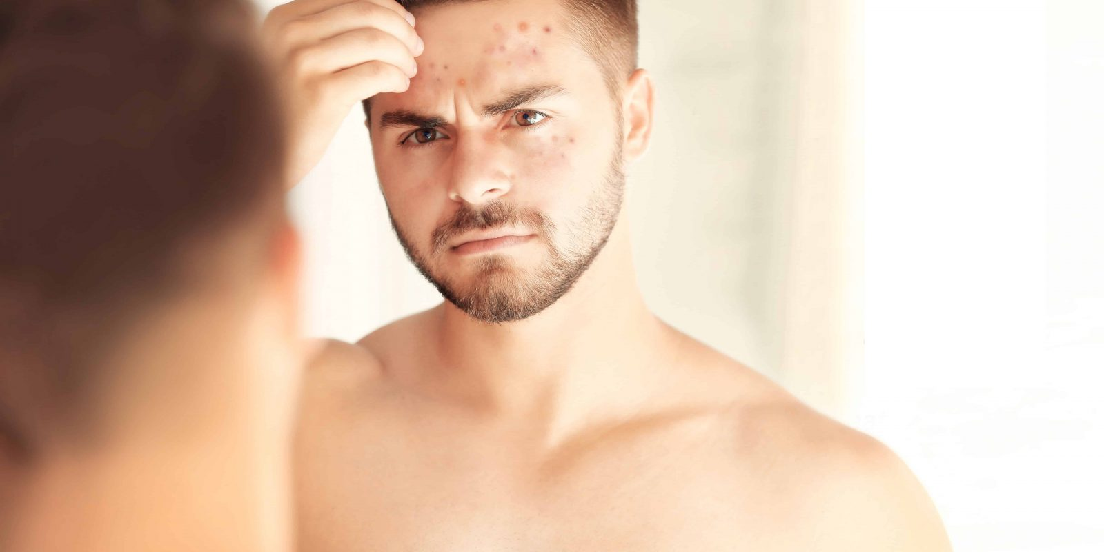 Beard and Skin Care Tips for Oily Skin